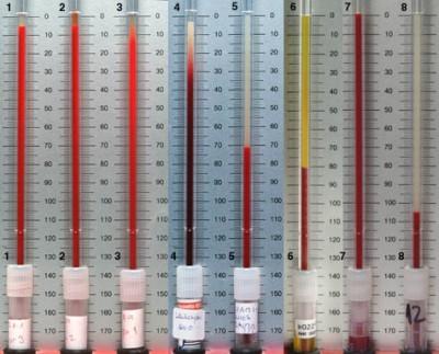 Повышенная СОЭ в крови: что это значит, причины повышенной скорости оседания эритроцитов