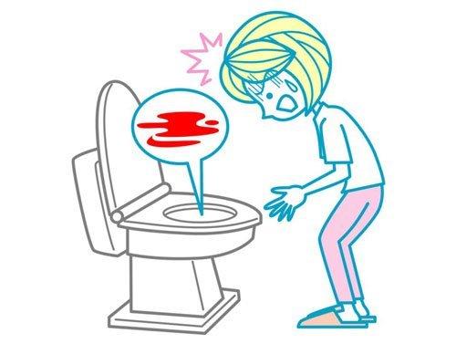 Примеси в кале: примеси крови в кале, примеси слизи в кале, причины гноя в кале