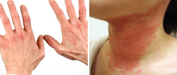 О какой болезни говорит высыпание пузырей на коже?