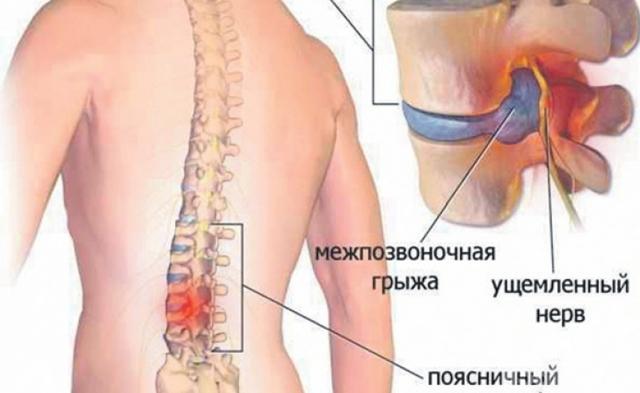 Компьютерная томография позвоночника при межпозвонковой грыже: необходимость и вред процедуры