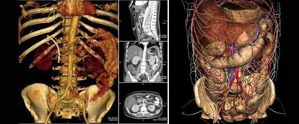 Компьютерная томография органов брюшной полости: показания, противопоказания, подготовка к процедуре