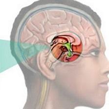 Пролактинома гипофиза: симптомы пролактиномы у женщин и мужчин, лечение