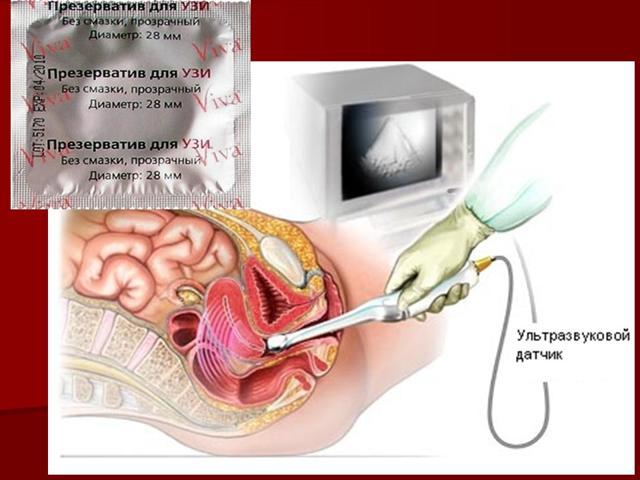 Трансвагинальное УЗИ органов малого таза: подготовка, показания, УЗИ при беременности