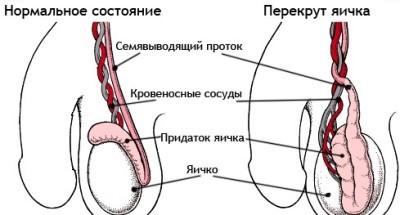 Перекрут яичка: симптомы, операция при перекруте яичка у мальчиков и мужчин