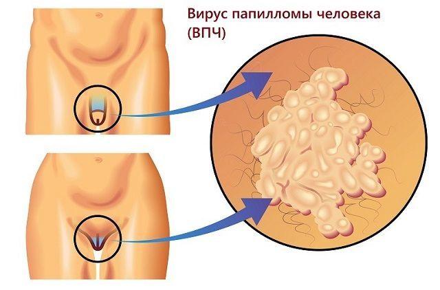 Аногенитальный кондиломатоз: причины, симптомы, лечение, профилактика