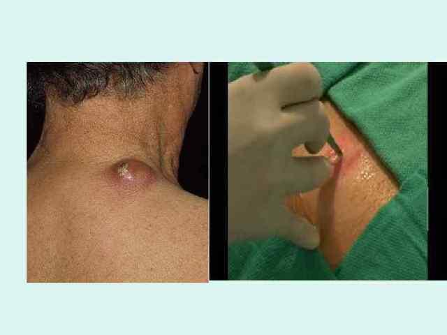Раневая инфекция: виды, особенности ухода за больными с гнойными ранениями, антибиотики