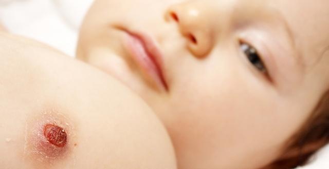 Нужна ли прививка от гепатита Б новорожденным, когда делают прививку от гепатита