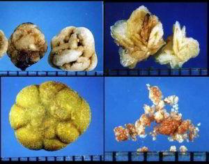 Как определить тип камня в почке