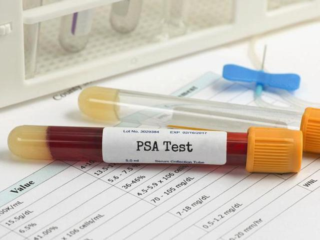 Какой лучше ПСА крови сделать - общий или свободный?