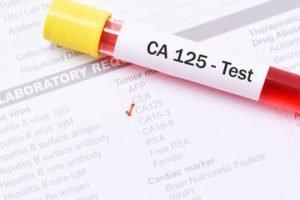 Что значит результат 26,43 по онкомаркеру СА 125?