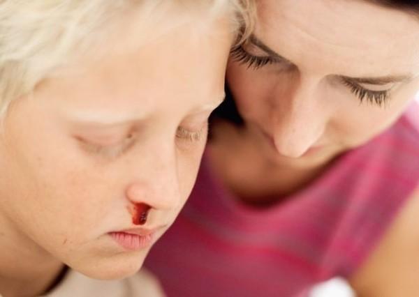 Геморрагические диатезы у детей: симптомы, диагностика и лечение геморрагического диатеза
