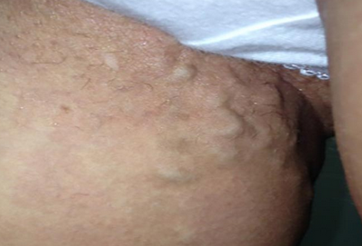 О чем говорит вздутая вена около паха после остеомиелита костей?