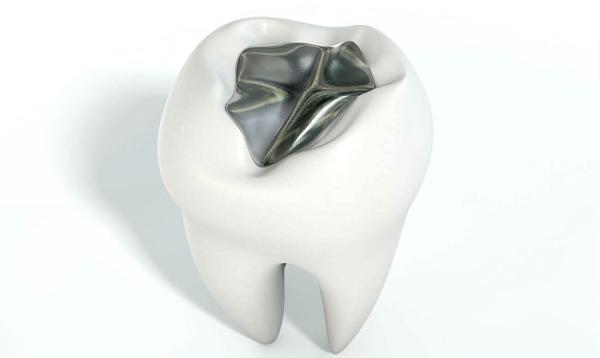Чем амальгама отличается от современных пломбировочных материалов?