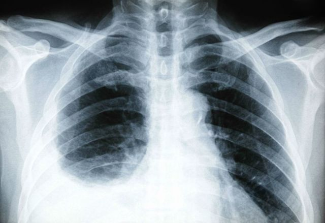 Почему колит в правом боку под ребрами при дыхании?