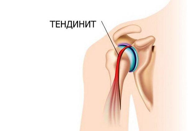 Тендиниты мышц и суставов: причины, симптомы, лечение