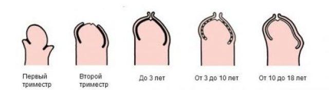 Операция при фимозе, физиологический фимоз, нужно ли открывать головку у мальчиков