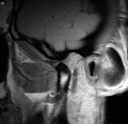 Как расшифровать МРТ височно-нижнечелюстного сустава?   ОкейДок