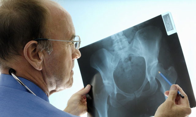 Коксартроз: симптомы и лечение, степени коксартроза тазобедренного сустава