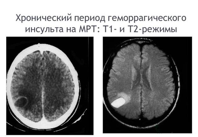 Как расшифровать результаты МРТ: накопление контраста в области таламуса