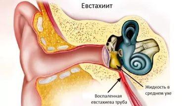 Какую помощь оказать при евстахиите до осмотра врачом?