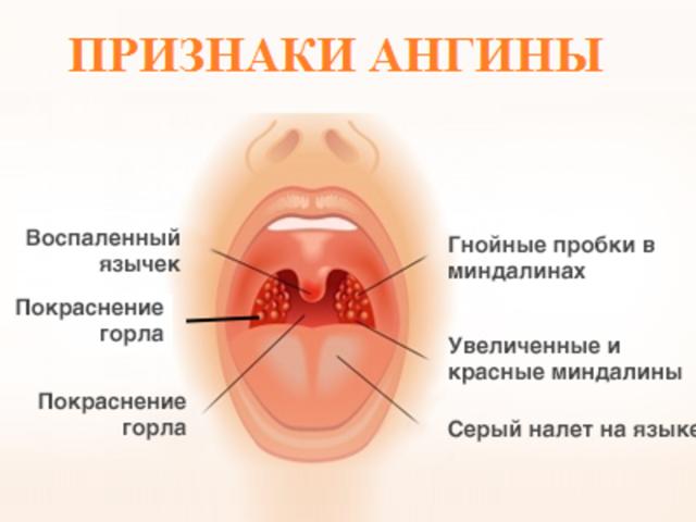 Чем лечить ангину при беременности: опасность тонзиллита в 1, 2 и 3 триместрах