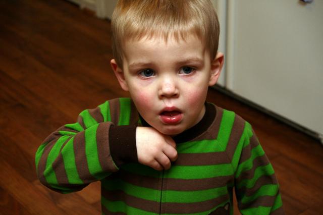 Какую микстуру пить ребенку при трахеите?
