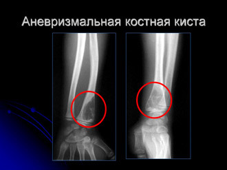 Костная киста плечевой, пяточной, большеберцовой кости, аневризмальная киста кости