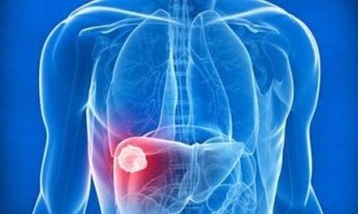 Вирусный гепатит c: как передается, лечение, признаки гепатита c, анализ на гепатит