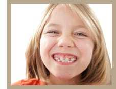 Когда лучше исправлять прикус у ребенка, как исправить неправильный прикус, лечение прикуса