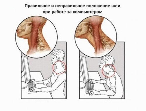 Как избавить от боли в шее и какие могут быть причины боли в шее