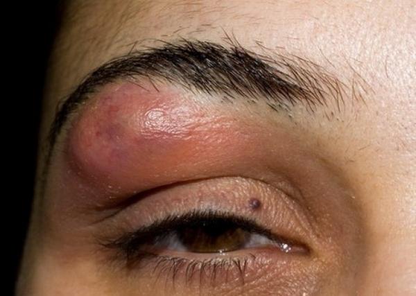 Могут ли быть прыщи из-за глистов: высыпания на коже при глистах