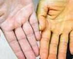 Может гемолитическая анемия перейти в железодефицитную анемию?