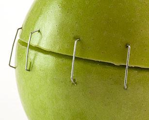 Как избавиться от рубца от аппендицита: причины появления келоидных рубцов и методы их удаления