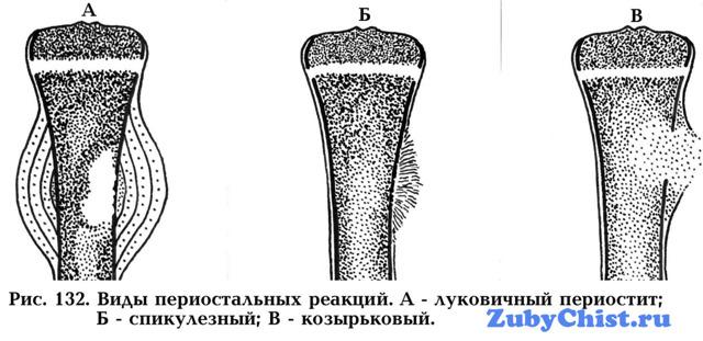 Периостит зуба на нижней и верхней челюсти, флюс на десне: симптомы, лечение