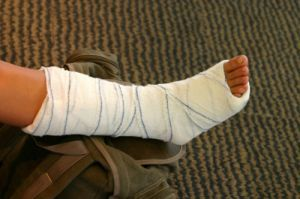 Ложный сустав после перелома: лечение, операция, причины формирования ложного сустава