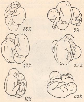 Поперечное положение плода в 29, 28, 30, 32 недели: причины, упражнения для переворота