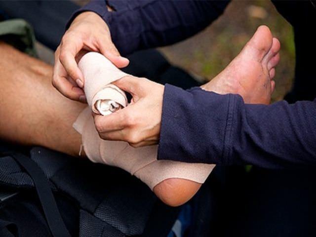 Вывих стопы — разновидности вывихов и причины их возникновения, симптомы вывиха, оказание первой помощи, лечение