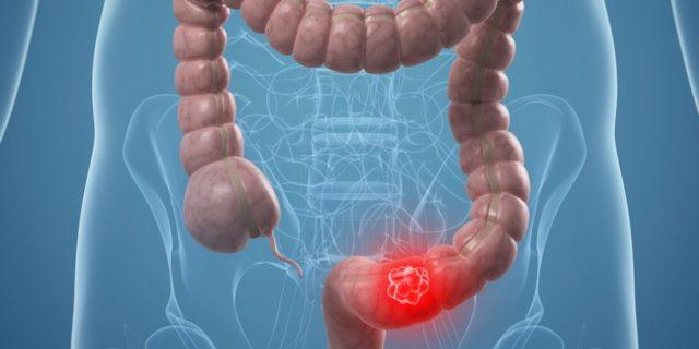 Ректальный пролапс: симптомы и лечение при выпадении прямой кишки у человека