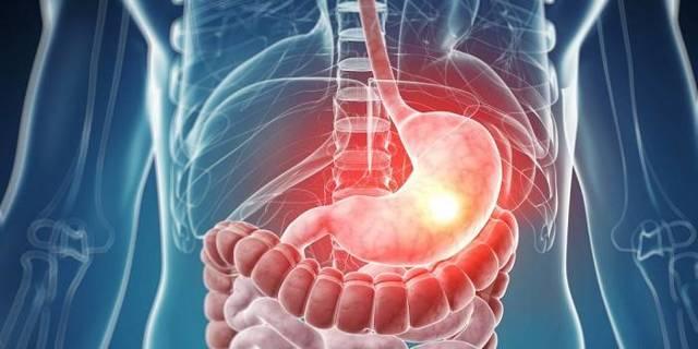 Боль в желудке: причины возникновения, диагностика, характер боли в желудке и методы лечения
