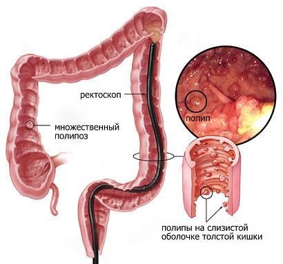 Наследственная неполипозная колоректальная карцинома: симптомы, лечение, операция, прогноз