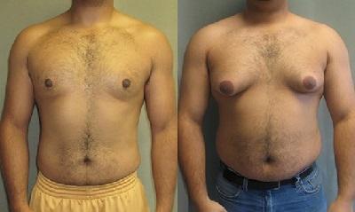 Гинекомастия у мужчин: операция и лечение гинекомастии у мужчин без операции