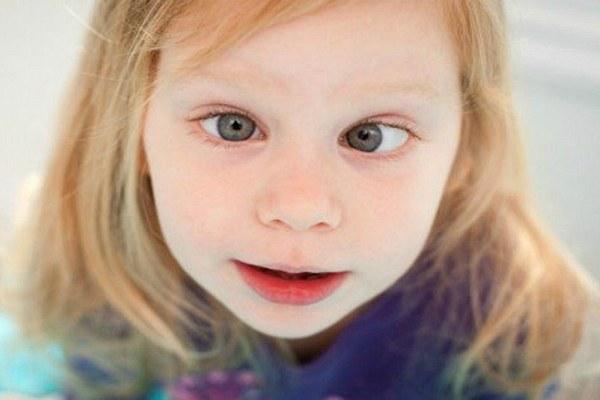 Косоглазие у детей: причины, симптомы, диагностика, лечение расходящегося и сходящегося косоглазия