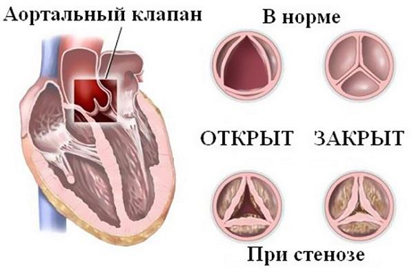 С чем связаны боли в сердце в молодом возрасте
