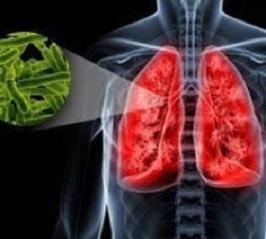 Что означают локальные пневмосклеротические фиброзные изменения в легких?