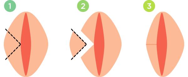 Большие половые губы меньше малых: лабиопластика для уменьшения малых половых губ