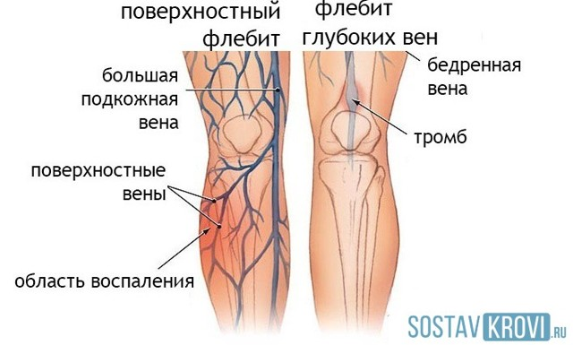 Флебит: симптомы и лечение флебита нижних и верхних конечностей