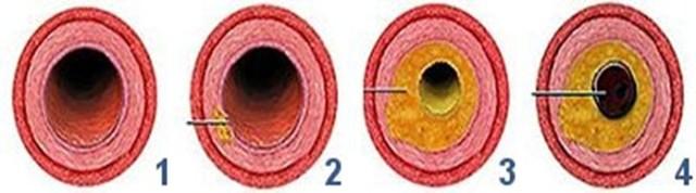 Атеросклероз: симптомы, причины, способы диагностики и профилактики, медикаментозные методы лАтеросклероз: симптомы, причины, способы диагностики и профилактики, медикаментозные методы лечения атеросклероза и средства народной медицины