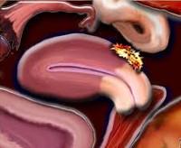 Что делать при аденомиозе и ретроцервикальном эндометриозе?