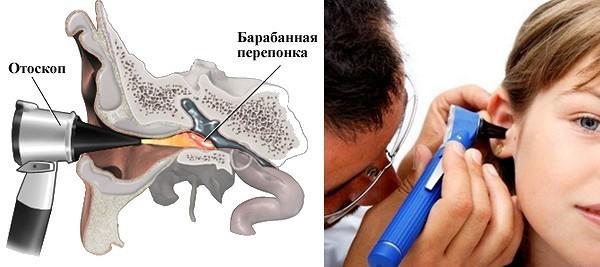 Какую первую помощь оказать при евстахиите до осмотра врачом?