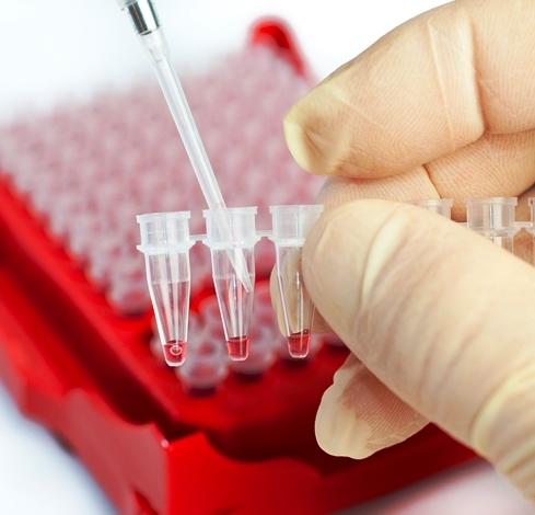 Как расшифровать общий анализ крови